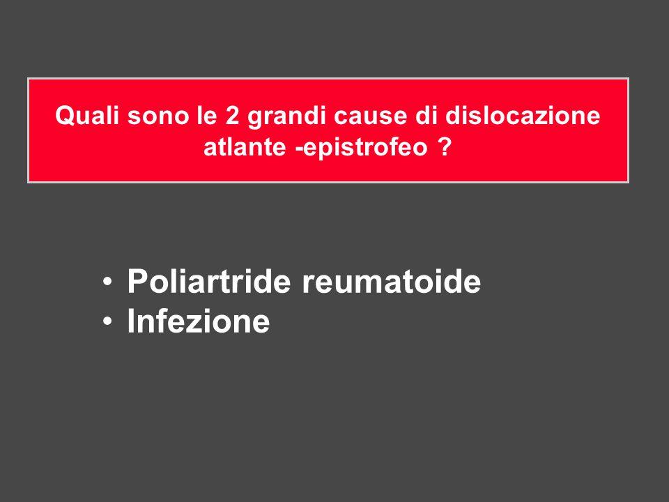 Quali sono le 2 grandi cause di dislocazione atlante -epistrofeo