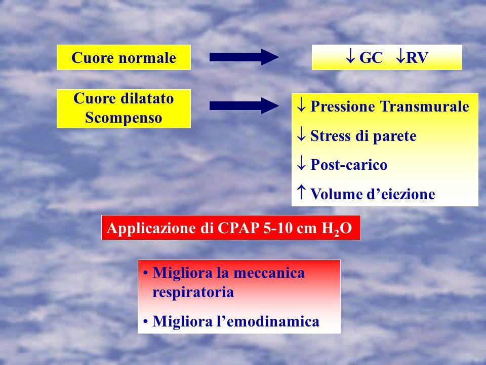 Cuore normale  GC RV. Cuore dilatato. Scompenso. Pressione Transmurale. Stress di parete. Post-carico.