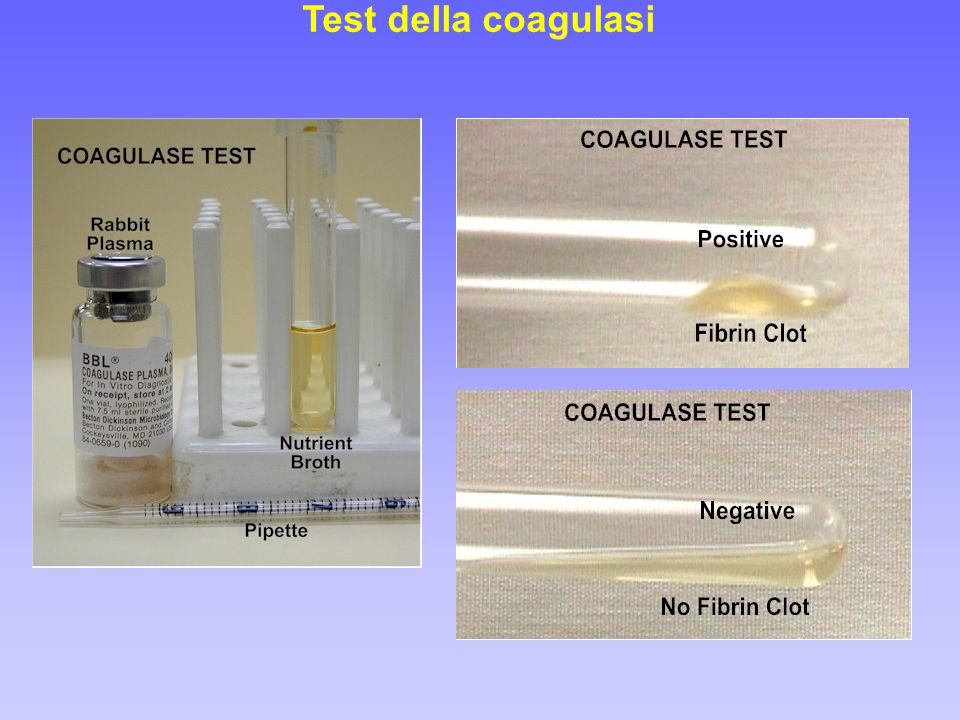 Test della coagulasi