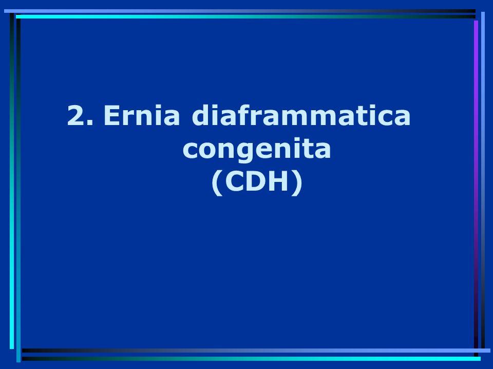 Ernia diaframmatica congenita (CDH)