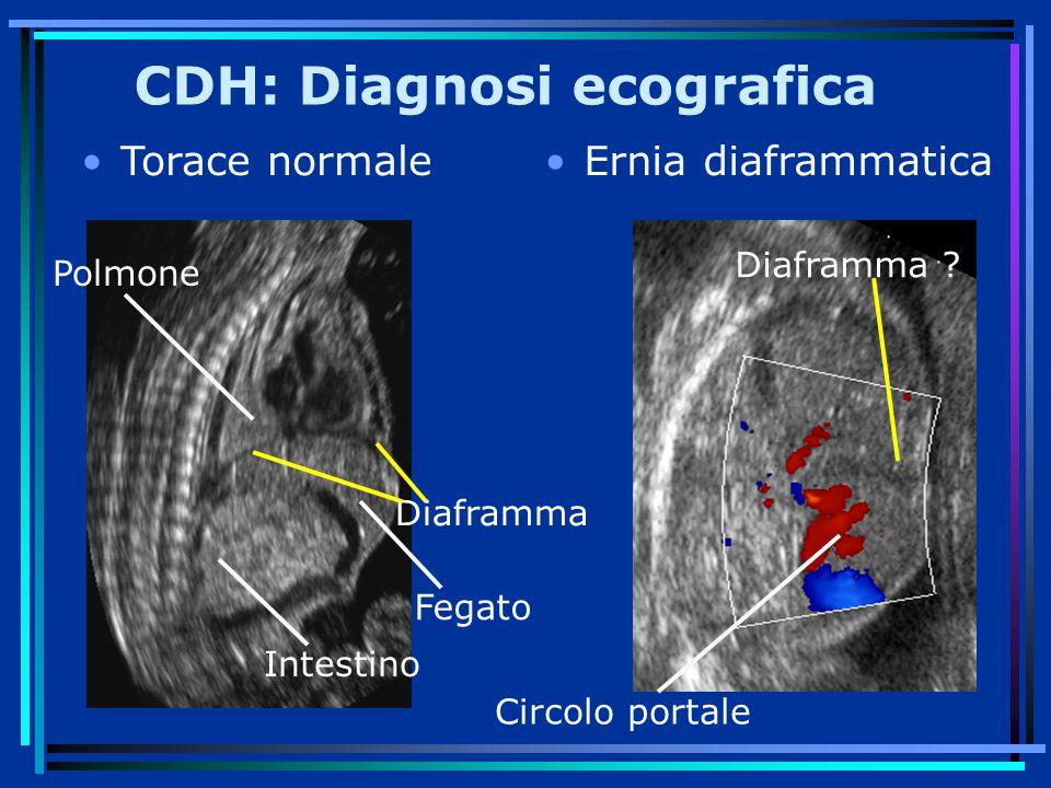 CDH: Diagnosi ecografica
