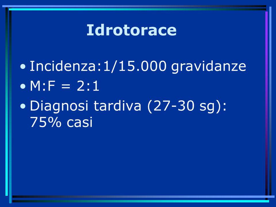 Idrotorace Incidenza:1/15.000 gravidanze M:F = 2:1