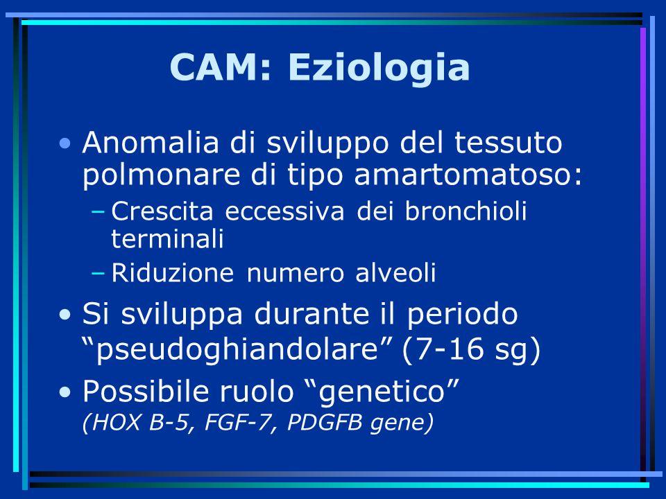 CAM: Eziologia Anomalia di sviluppo del tessuto polmonare di tipo amartomatoso: Crescita eccessiva dei bronchioli terminali.