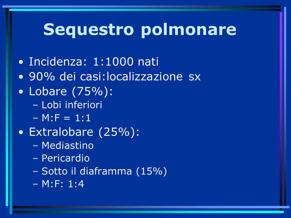 Sequestro polmonare Incidenza: 1:1000 nati