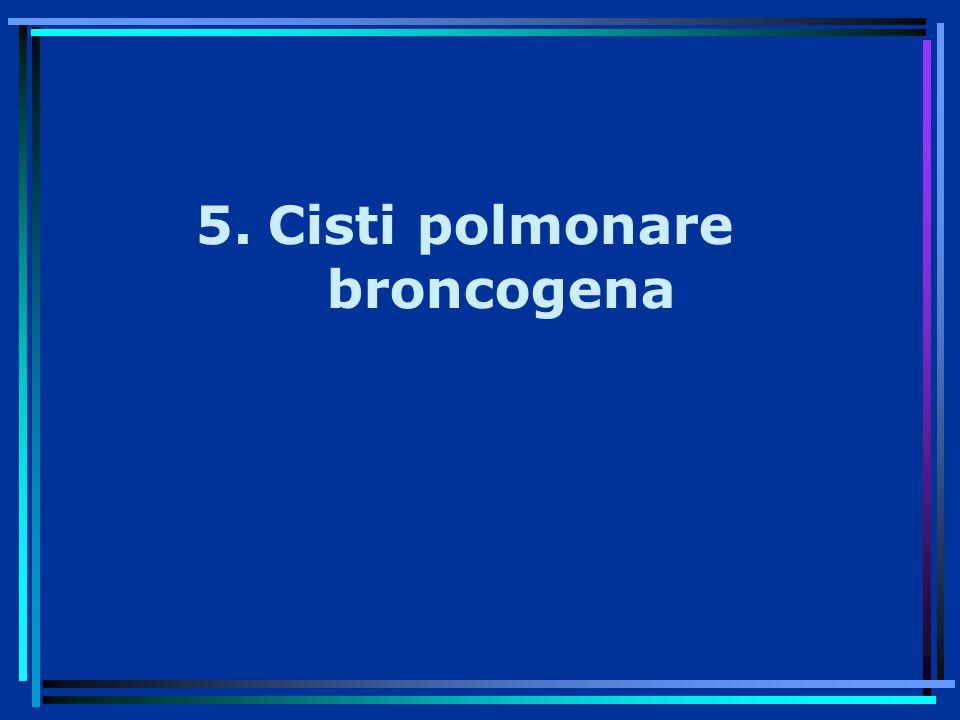 Cisti polmonare broncogena