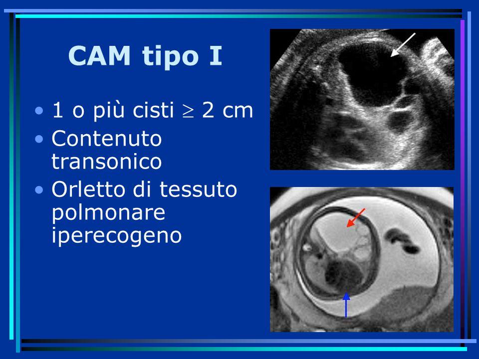 CAM tipo I 1 o più cisti  2 cm Contenuto transonico