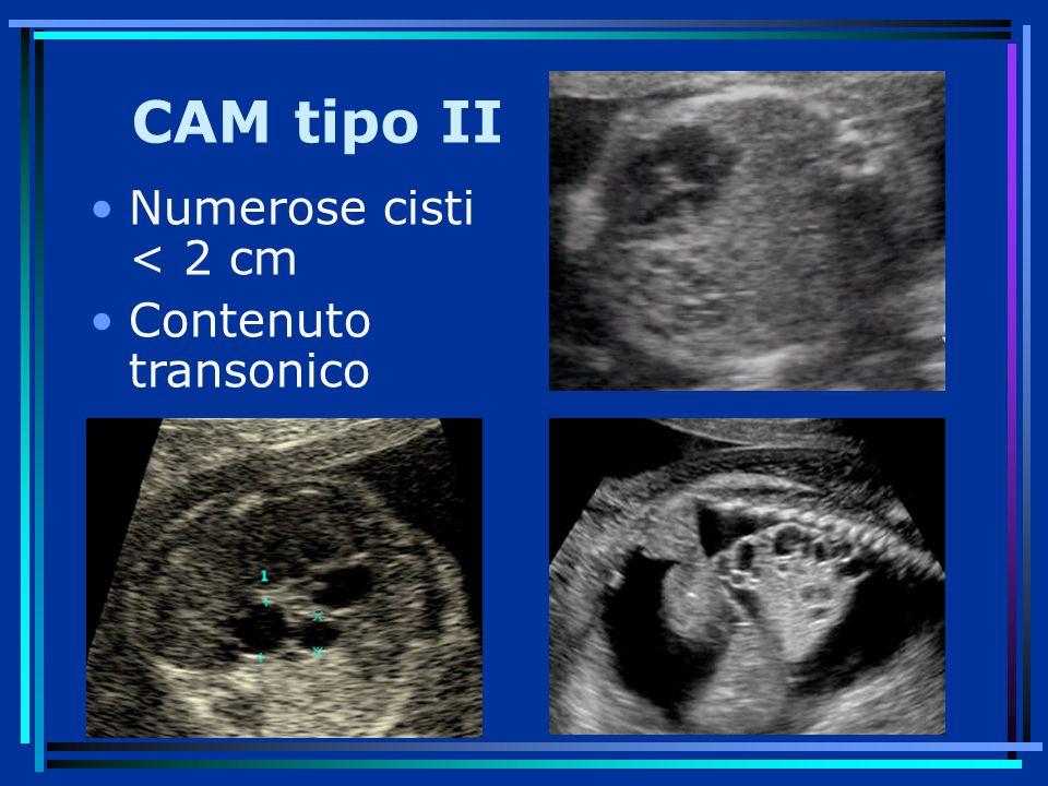 CAM tipo II Numerose cisti < 2 cm Contenuto transonico