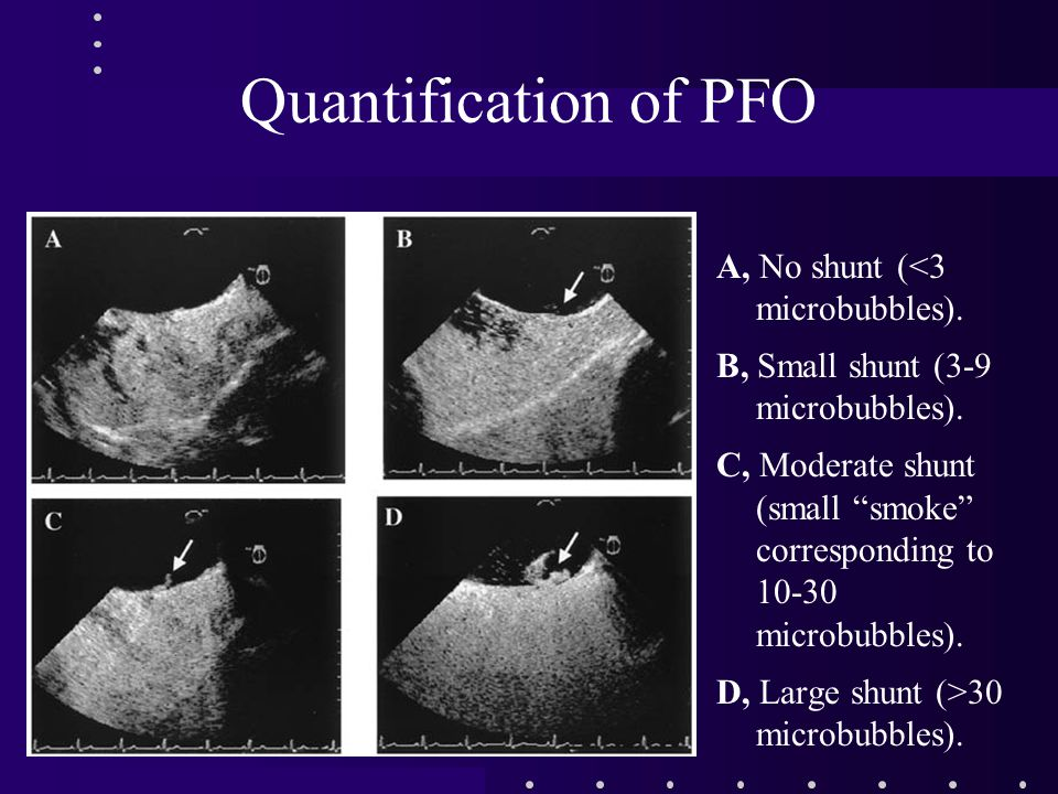 Quantification of PFO A, No shunt (<3 microbubbles).
