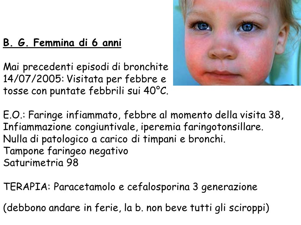 B. G. Femmina di 6 anni Mai precedenti episodi di bronchite. 14/07/2005: Visitata per febbre e. tosse con puntate febbrili sui 40°C.