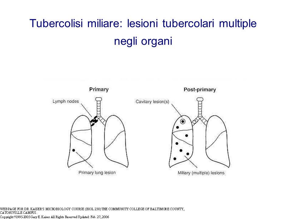 Tubercolisi miliare: lesioni tubercolari multiple negli organi
