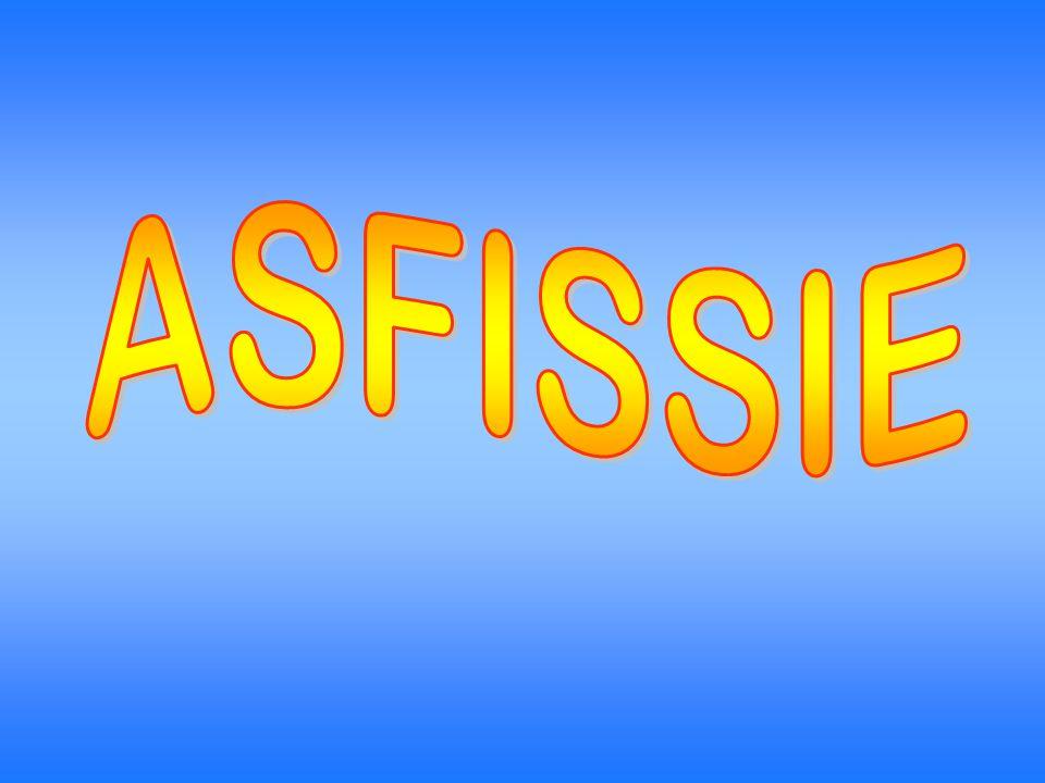 ASFISSIE