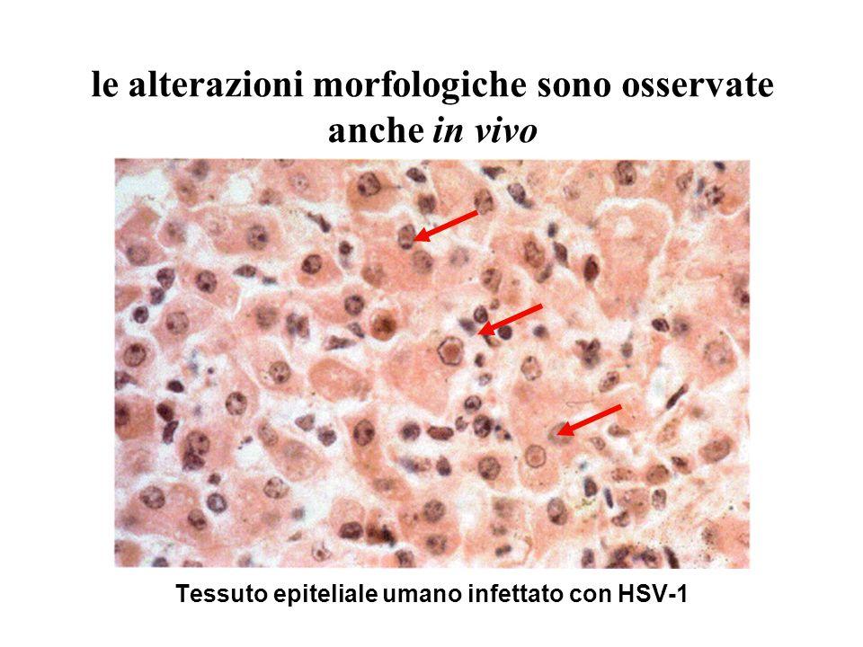 Tessuto epiteliale umano infettato con HSV-1