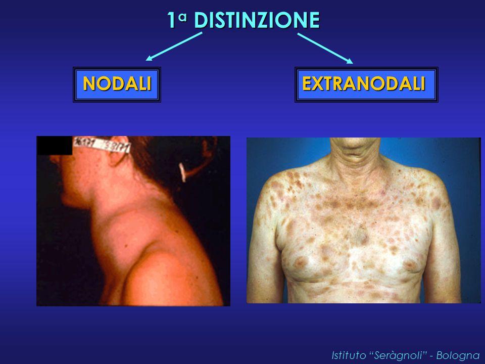 1a DISTINZIONE NODALI EXTRANODALI Istituto Seràgnoli - Bologna