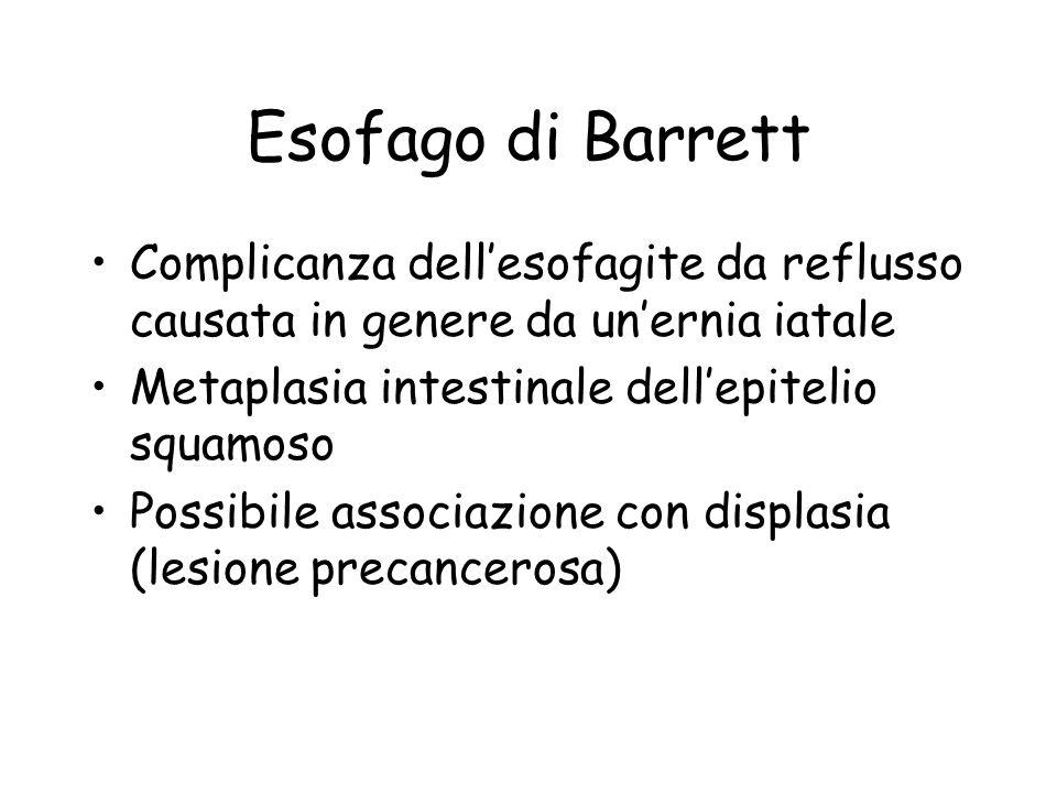 Esofago di Barrett Complicanza dell'esofagite da reflusso causata in genere da un'ernia iatale. Metaplasia intestinale dell'epitelio squamoso.