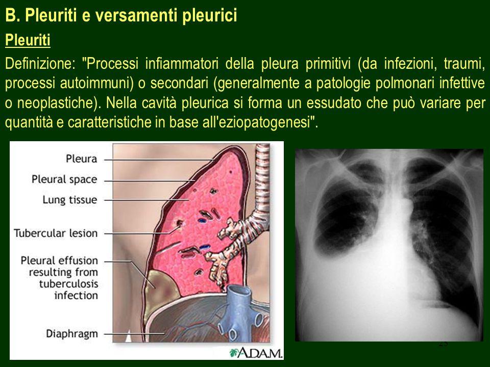 B. Pleuriti e versamenti pleurici