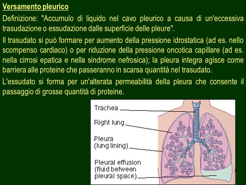 Versamento pleurico