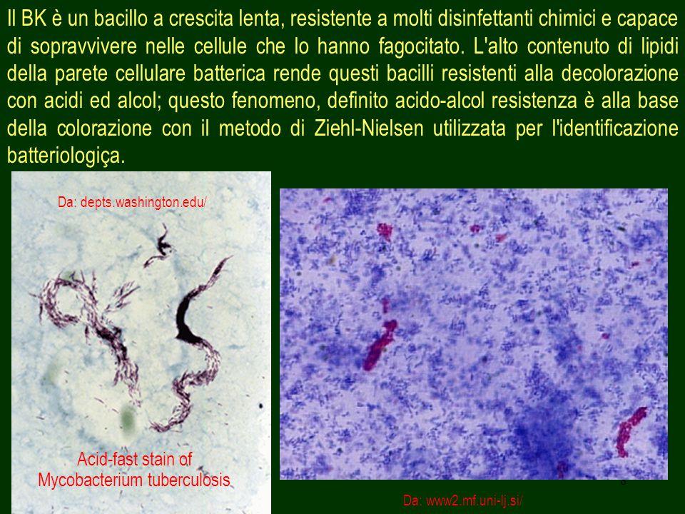 Acid-fast stain of Mycobacterium tuberculosis