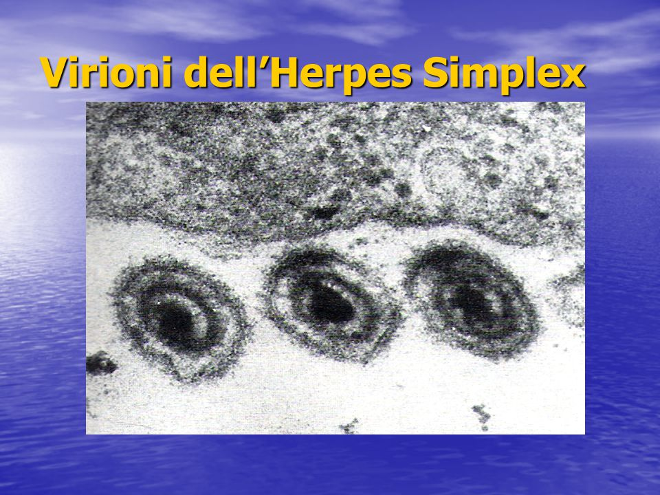Virioni dell'Herpes Simplex