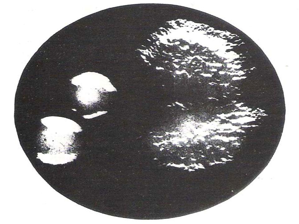 Colonie S ( a sinistra ) e colonie R ( a destra ) di Salmonella typhi