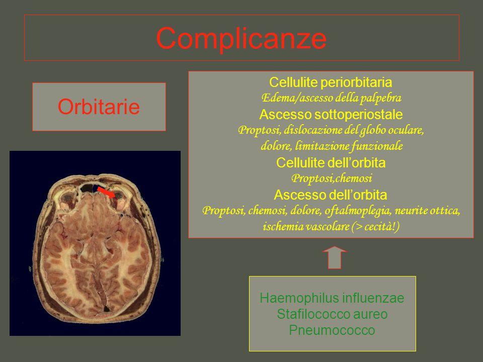 Complicanze Orbitarie Cellulite periorbitaria
