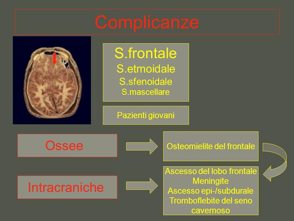 Complicanze S.frontale Ossee Intracraniche S.etmoidale S.sfenoidale