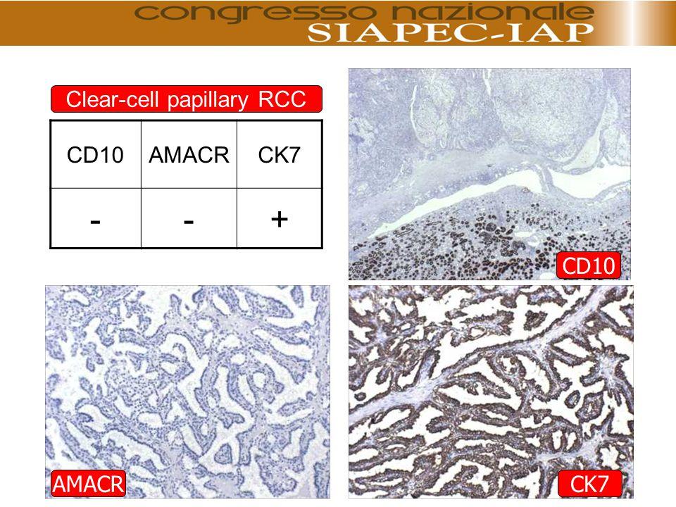 Clear-cell papillary RCC