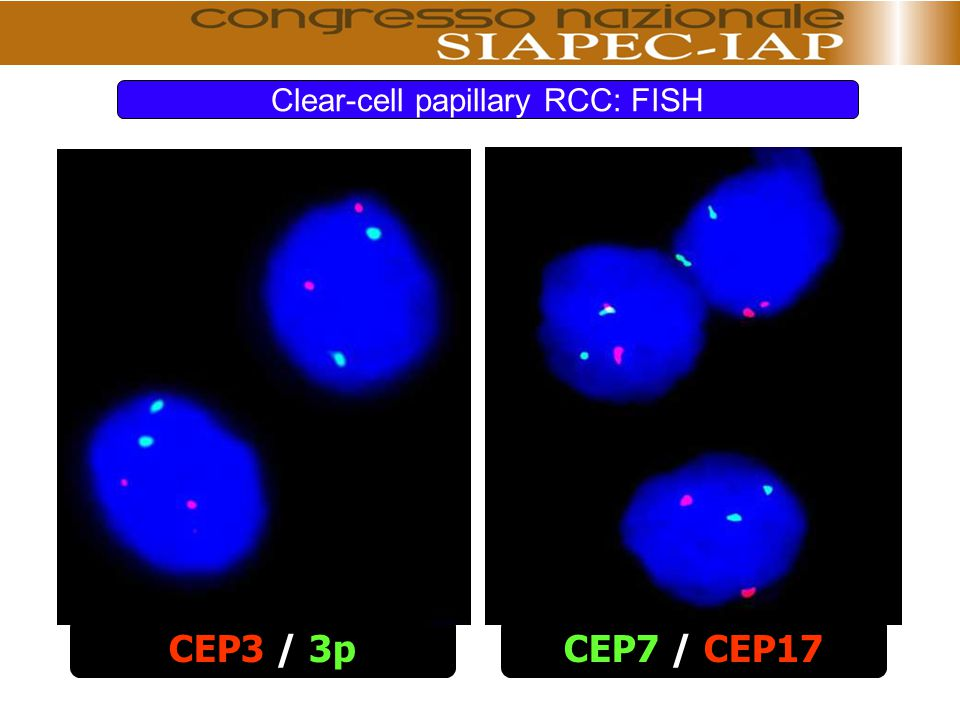 Clear-cell papillary RCC: FISH