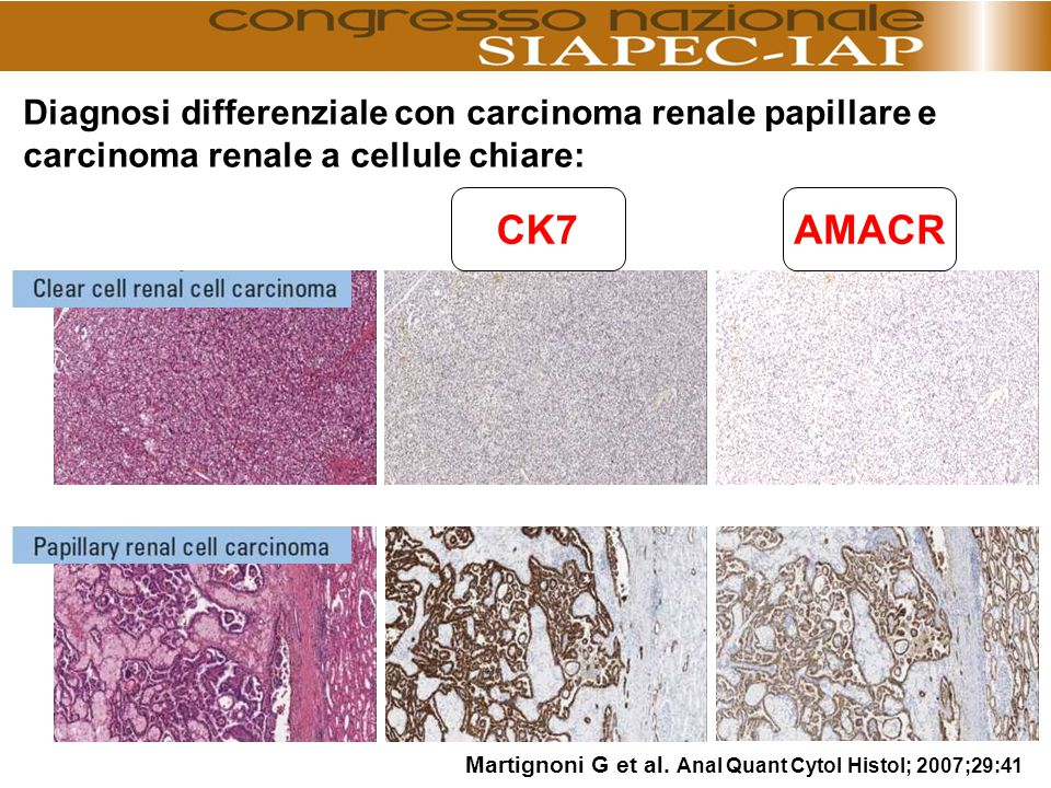 Diagnosi differenziale con carcinoma renale papillare e carcinoma renale a cellule chiare: