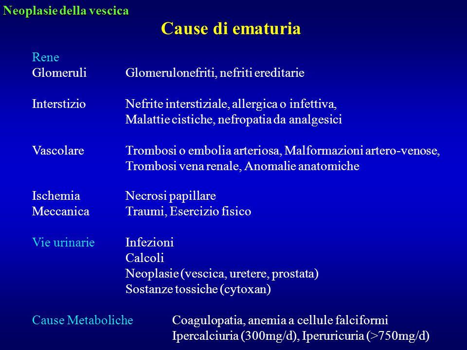 Cause di ematuria Neoplasie della vescica Rene