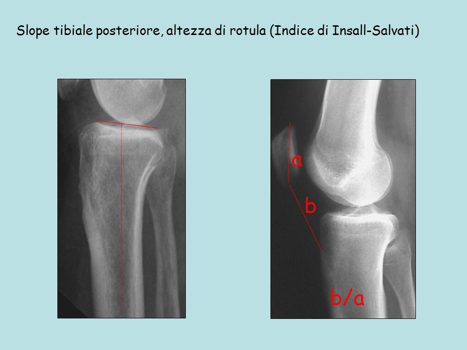 Slope tibiale posteriore, altezza di rotula (Indice di Insall-Salvati)