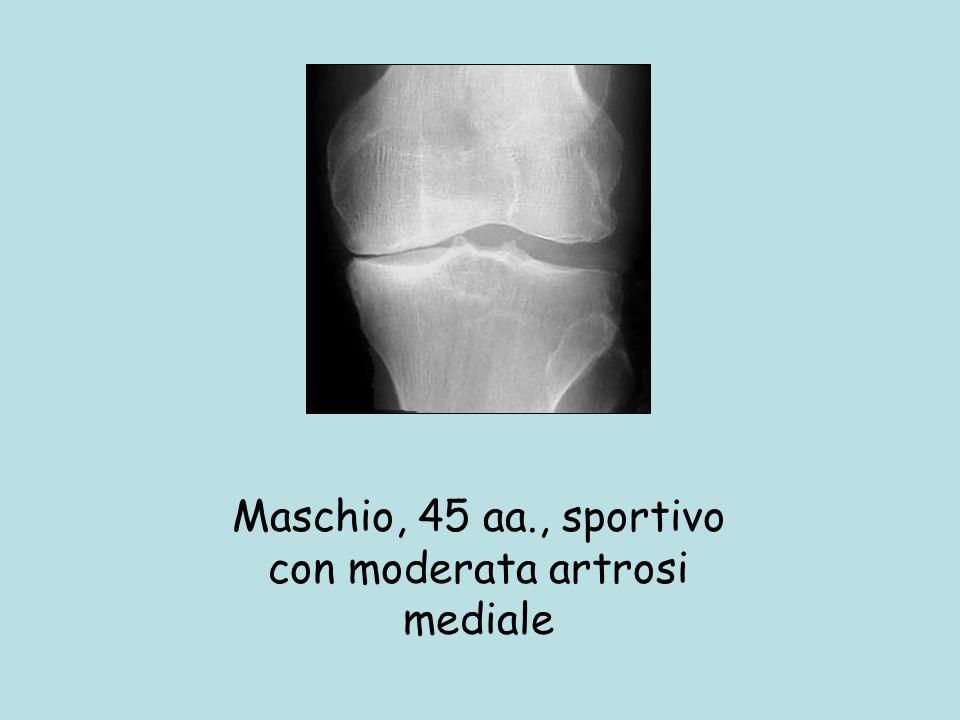 Maschio, 45 aa., sportivo con moderata artrosi mediale