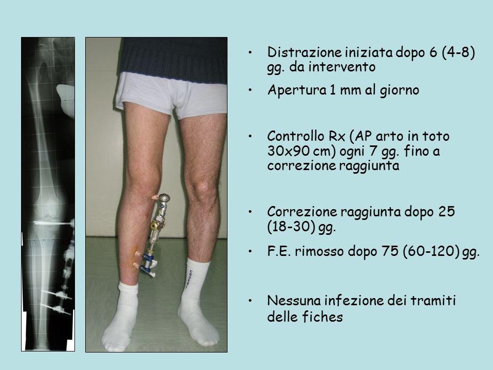 Distrazione iniziata dopo 6 (4-8) gg. da intervento