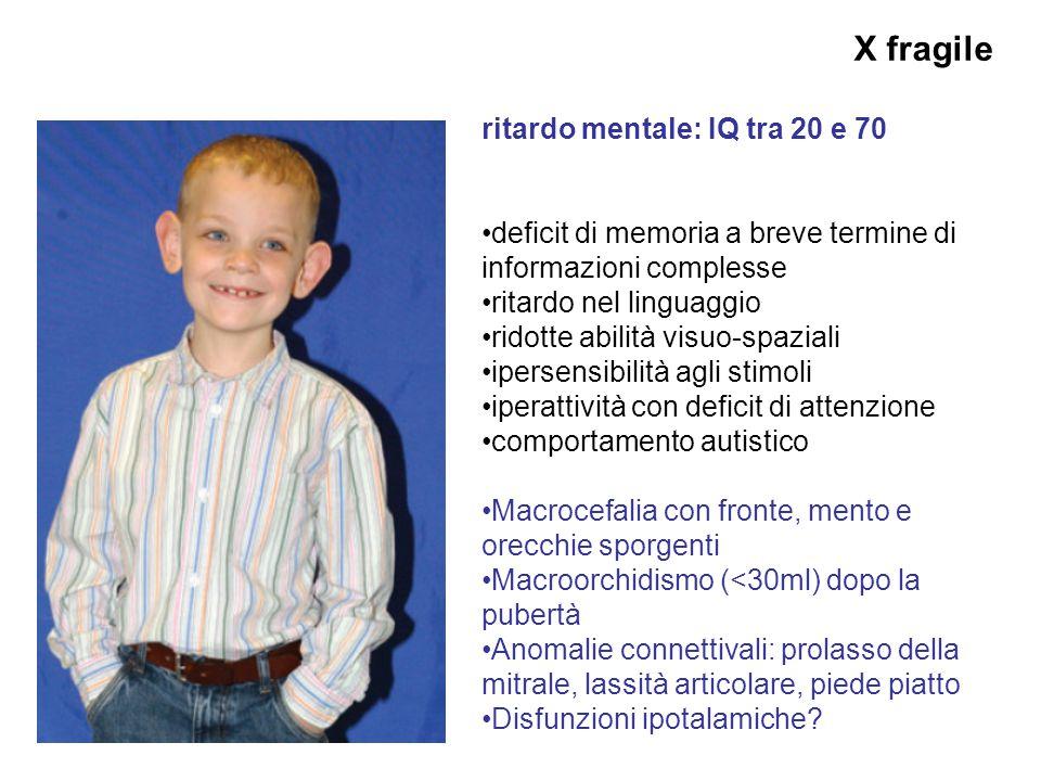 X fragile ritardo mentale: IQ tra 20 e 70