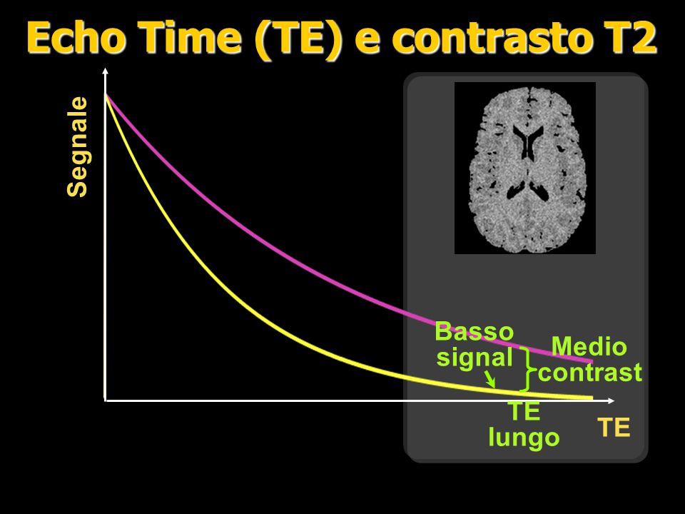 Echo Time (TE) e contrasto T2
