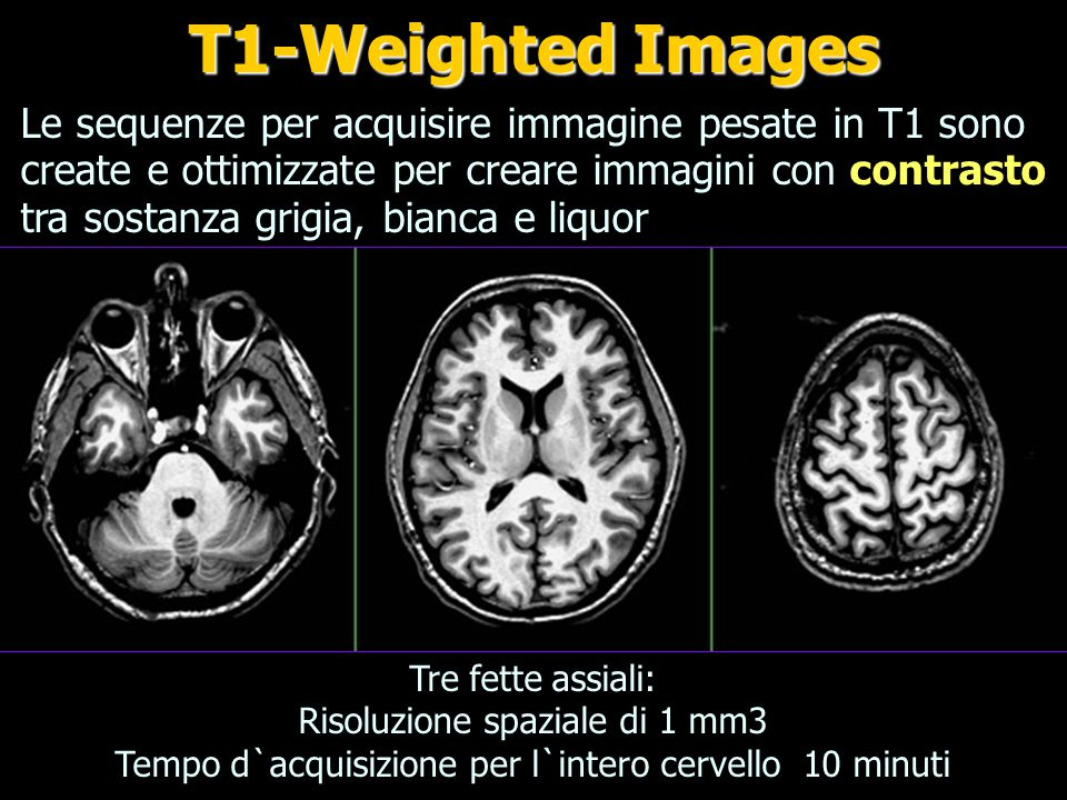 T1-Weighted Images
