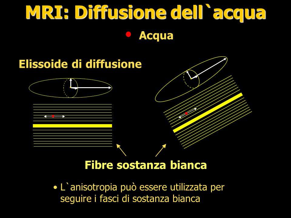 MRI: Diffusione dell`acqua