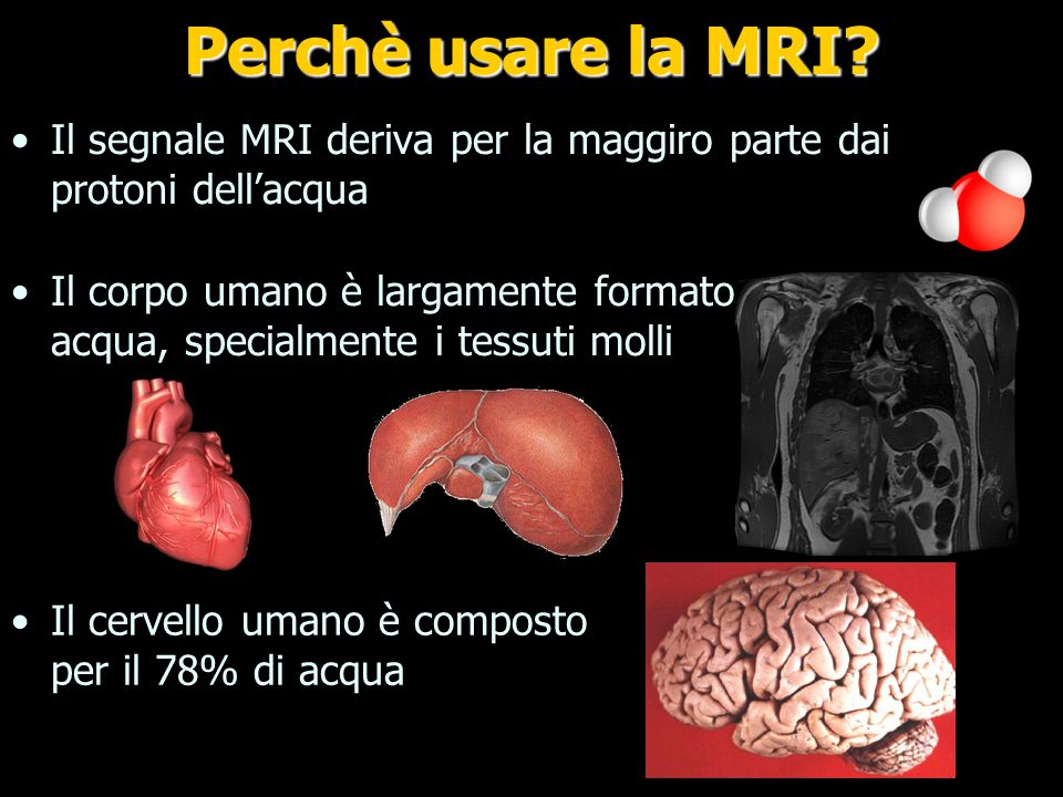 What is MRI used for Perchè usare la MRI
