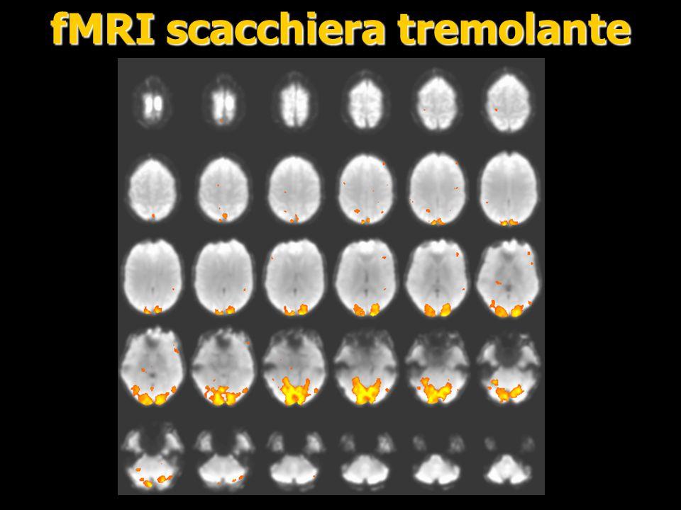 fMRI scacchiera tremolante