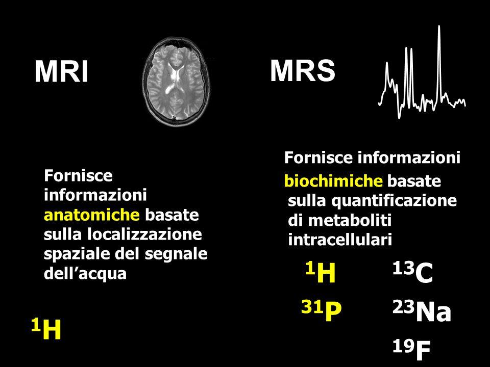 MRI MRS Fornisce informazioni