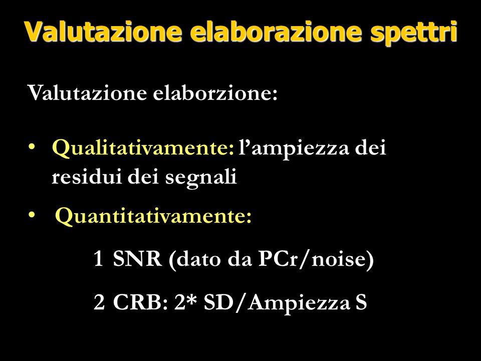 Valutazione elaborazione spettri