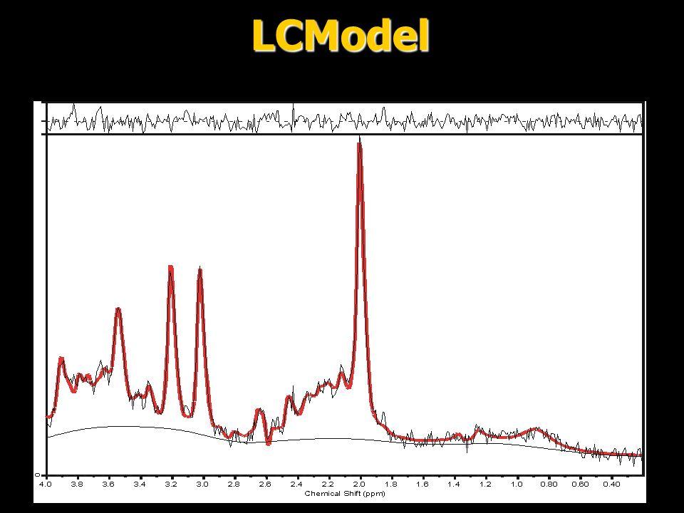 LCModel