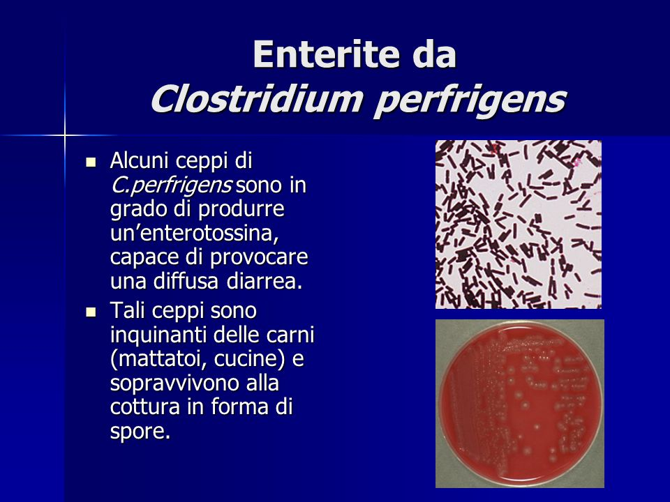 Enterite da Clostridium perfrigens