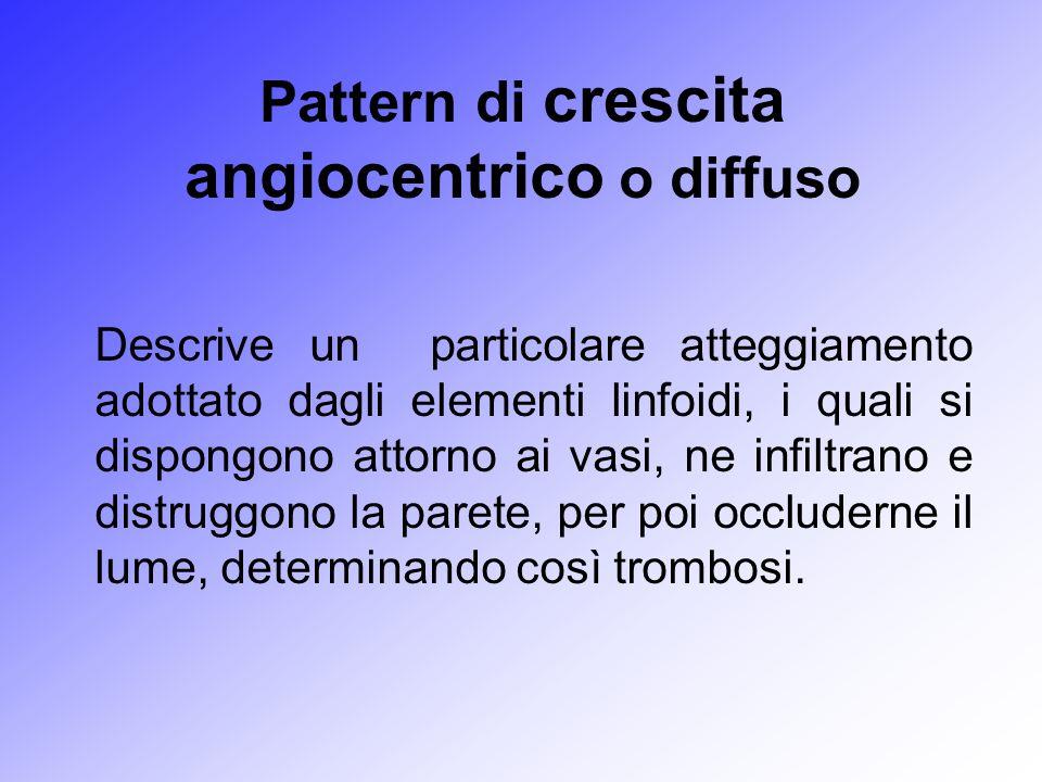 Pattern di crescita angiocentrico o diffuso