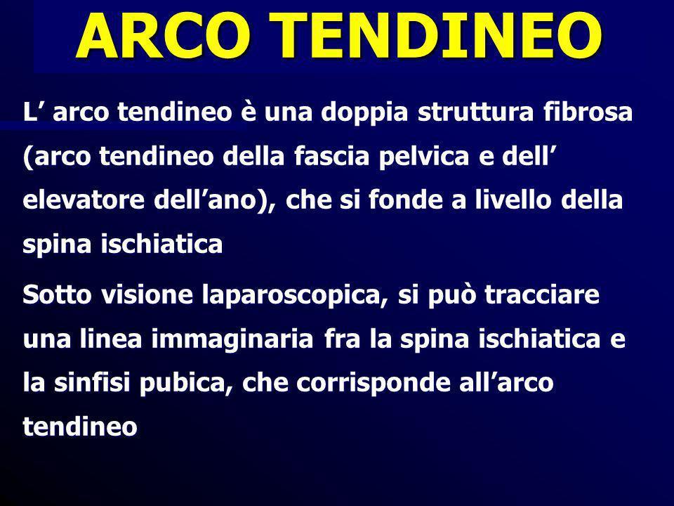 ARCO TENDINEO 02/13/102.
