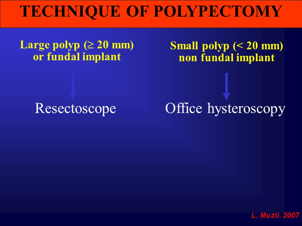 TECHNIQUE OF POLYPECTOMY