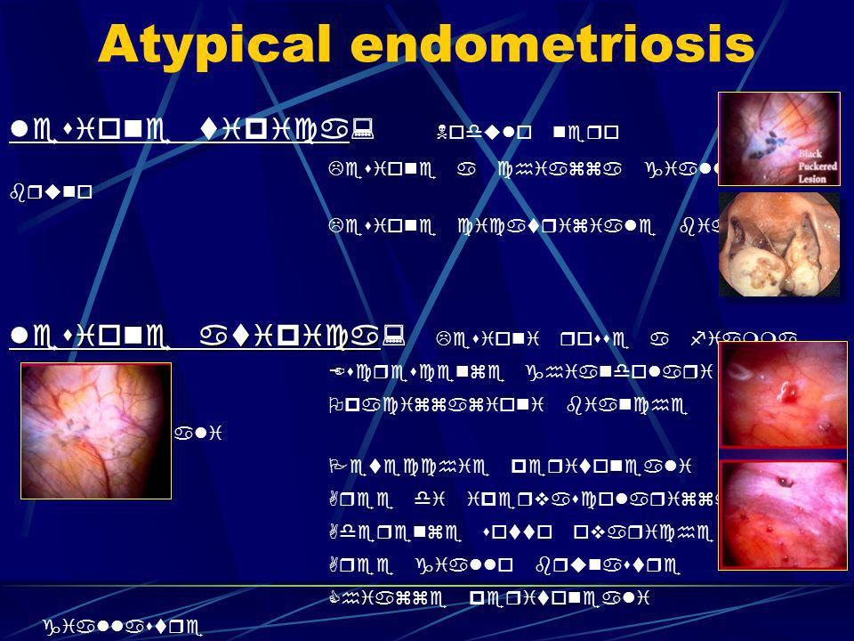 Atypical endometriosis