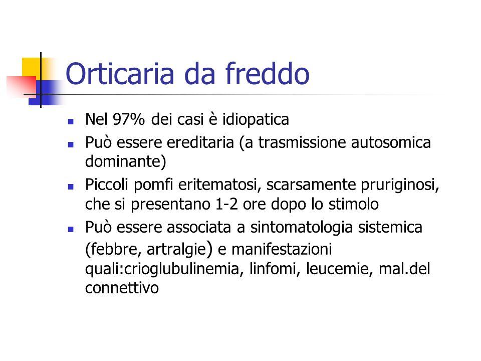Orticaria da freddo Nel 97% dei casi è idiopatica