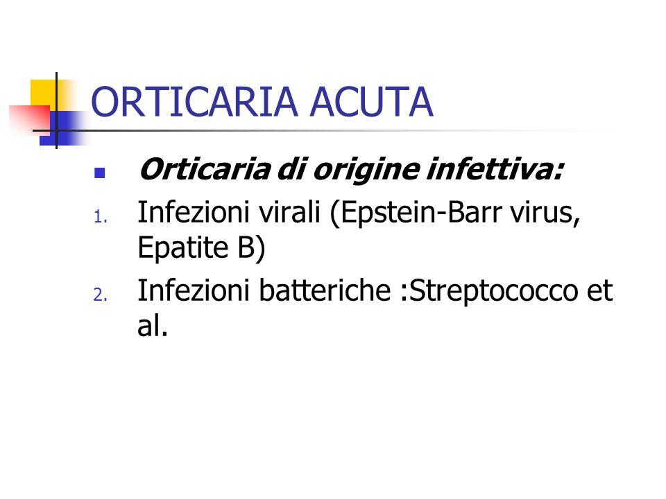 ORTICARIA ACUTA Orticaria di origine infettiva: