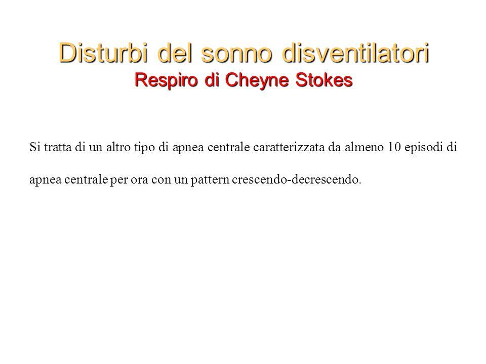 Disturbi del sonno disventilatori Respiro di Cheyne Stokes