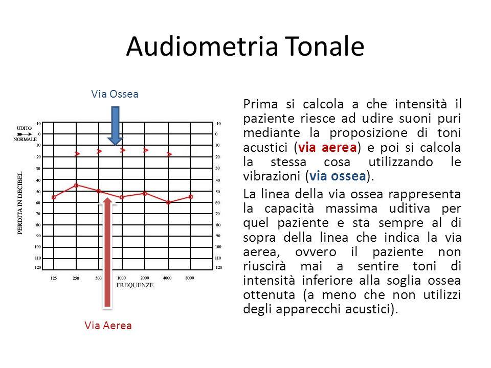 Audiometria Tonale Via Ossea.